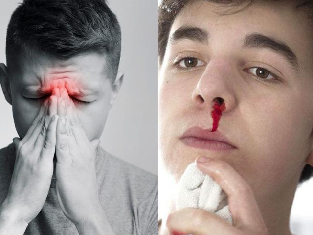 """Có những dấu hiệu này phải đi khám ung thư mũi và xoang ngay lập tức kẻo """"hối không kịp"""""""