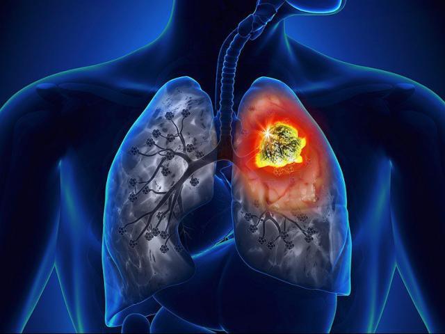 Cả đời không hút 1 điếu thuốc lá vẫn bị ung thư phổi, có thể vì những lý do này