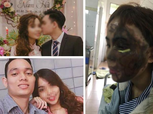 Xét xử thiếu úy tạt axít vợ sắp cưới: Trước khi tạt axít, Hải đã đánh vợ 2 lần