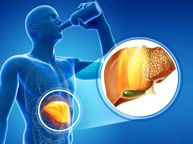 Người mắc bệnh gan nên và không nên ăn những thực phẩm nào?