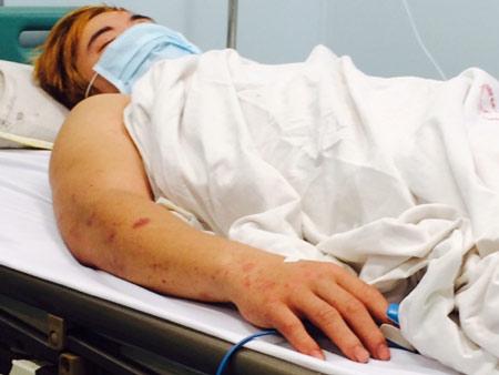 Bệnh nhân mắc não mô cầu ở Hà Nội đã tỉnh táo hoàn toàn - hình ảnh 1