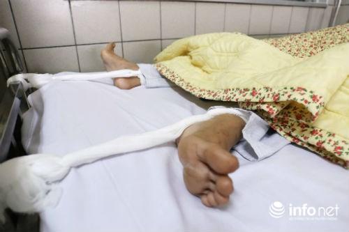 Chùm ảnh: Trói chặt bệnh nhân vào giường điều trị sảng rượu - hình ảnh 6