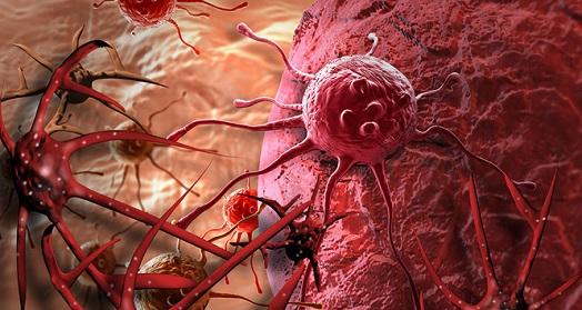8 quan niệm sai lầm về bệnh ung thư cần từ bỏ ngay - hình ảnh 3
