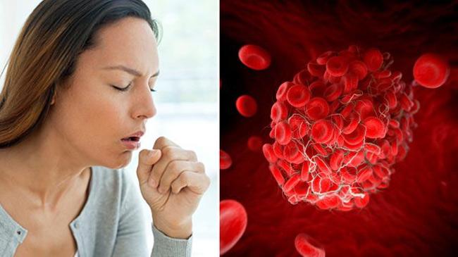 Dấu hiệu đơn giản cảnh báo cơ thể đang gặp nguy hiểm vì có cục máu đông - hình ảnh 3
