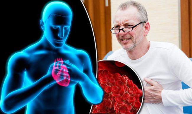 Dấu hiệu đơn giản cảnh báo cơ thể đang gặp nguy hiểm vì có cục máu đông - hình ảnh 1