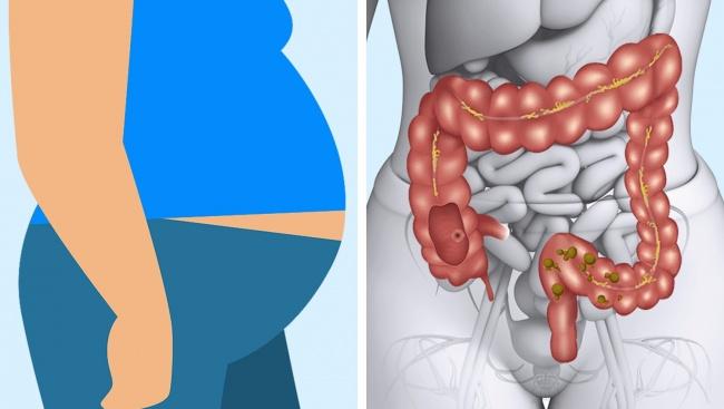Dấu hiệu cảnh báo cơ thể đang gặp nguy hiểm vì ăn thịt - hình ảnh 9