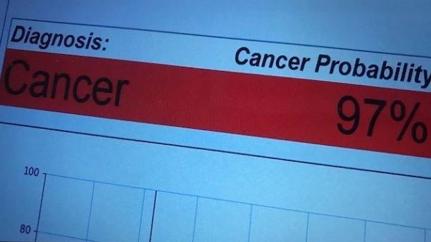 """""""Bút ung thư"""" phát hiện ra bệnh ung thư trong chỉ 20 giây - hình ảnh 2"""