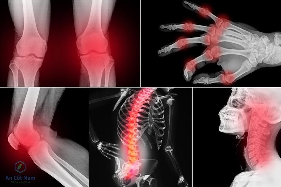 Đau nhức xương khớp toàn thân uống thuốc gì tốt cho người già, người trẻ - 1