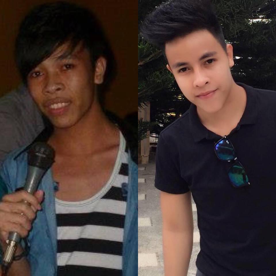 Kỳ tích thay đổi diện mạo đẹp khó tin của 2 chàng trai Ninh Bình, Tiền Giang - 7