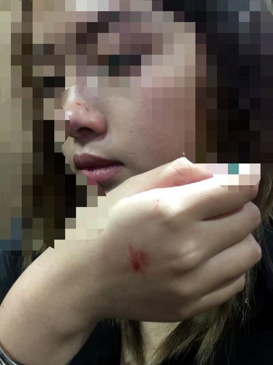 Giám đốc Công an Hà Nội lên tiếng vụ nữ sinh viên bị sàm sỡ trong thang máy - 2