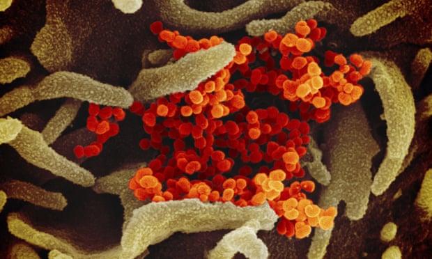 WHO công bố kết quả phân tích mức độ nguy hiểm của virus Corona - 1