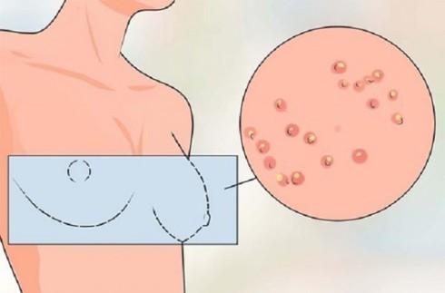 """6 tín hiệu trên cơ thể cần lưu ý trước khi ung thư """"đổ bộ"""" - 4"""