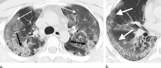 Hình ảnh phổi của bệnh nhân nhiễm Covid-19 bị virus Corona tàn phá - 3