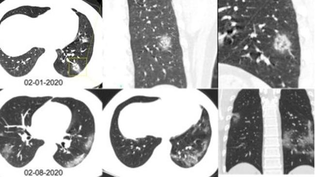 Hình ảnh phổi của bệnh nhân nhiễm Covid-19 bị virus Corona tàn phá - 7