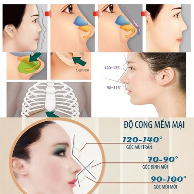 11 phương pháp nâng mũi phổ biến hiện nay - 8