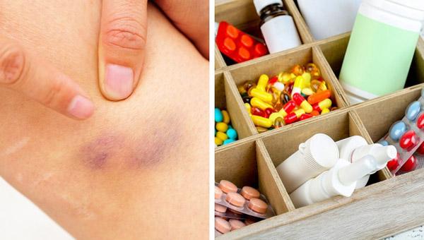 Nếu hay bị các vết bầm tím không rõ lý do thì có thể bạn bị các bệnh này - 2