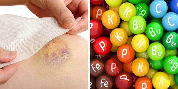 Nếu hay bị các vết bầm tím không rõ lý do thì có thể bạn bị các bệnh này - 4