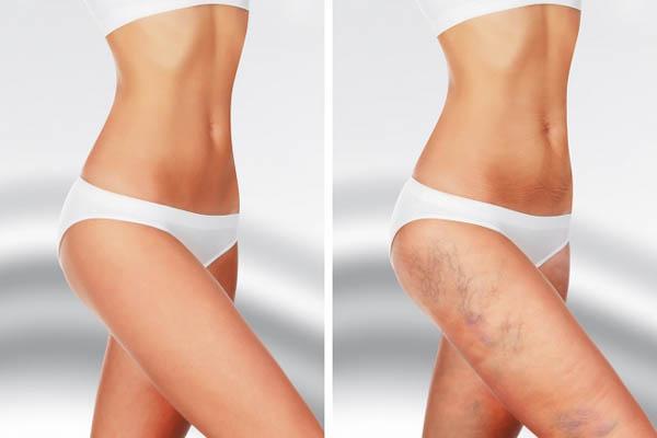 Nếu hay bị các vết bầm tím không rõ lý do thì có thể bạn bị các bệnh này - 6