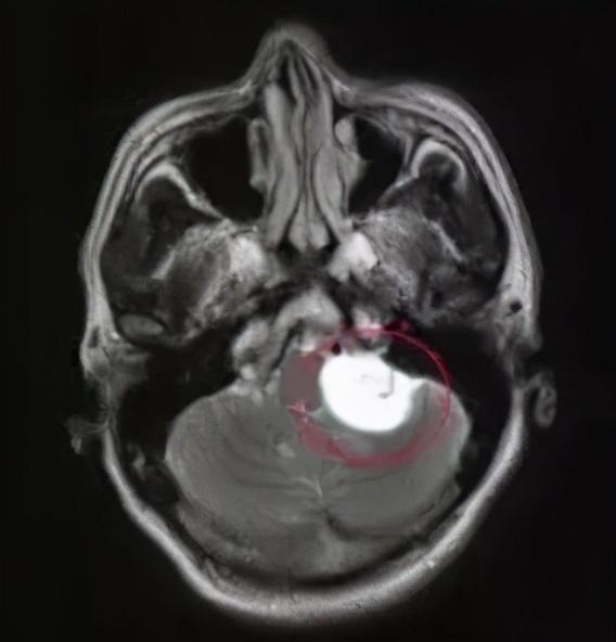 Không nhịn được cười, cậu bé 12 tuổi bị phát hiện có khối u trong não - hình ảnh 1