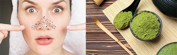 10 cách trị mụn đầu đen ở mũi tận gốc tại nhà an toàn và hiệu quả nhất - hình ảnh 7