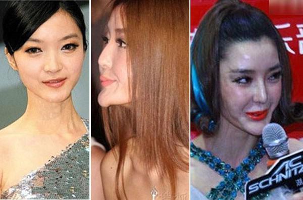 Những 'thảm họa dao kéo' của showbiz châu Á - 5