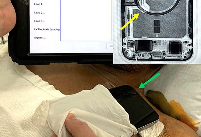 Apple chính thức cảnh báo mối nguy hiểm trên iPhone 12 - 3