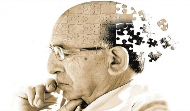 Nghiên cứu mới nhất: Bệnh nhân sa sút trí tuệ có nguy cơ mắc COVID-19 cao gấp 2 lần - 3