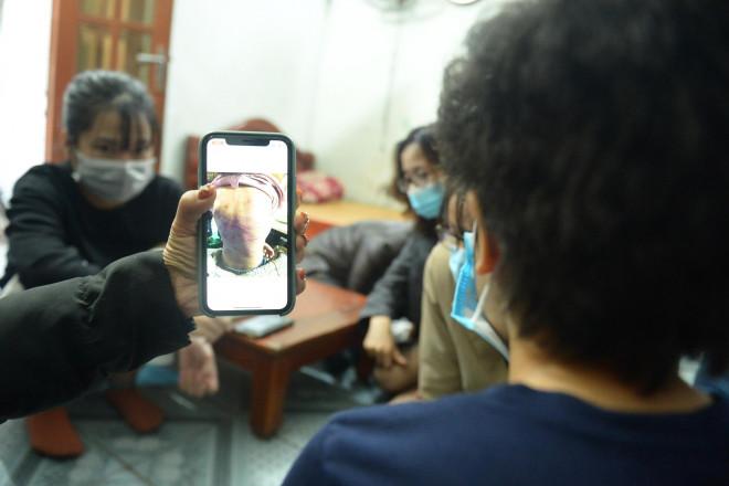 Hà Nội yêu cầu khẩn trương làm rõ vụ bé gái 12 tuổi ở Hà Đông nghi bị mẹ đẻ bạo hành dã man - 1