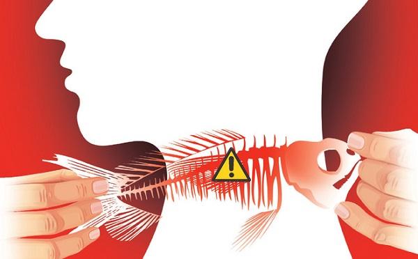 Hóc xương cá không còn là vấn đề đáng sợ nếu bạn biết mẹo vặt này - 2