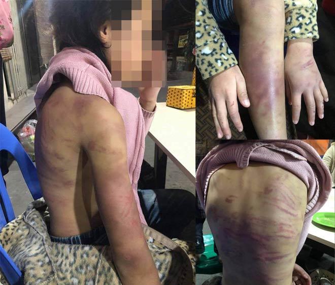 Thông tin mới vụ bé gái 12 tuổi bị bạo hành, xâm hại ở Hà Nội - hình ảnh 2