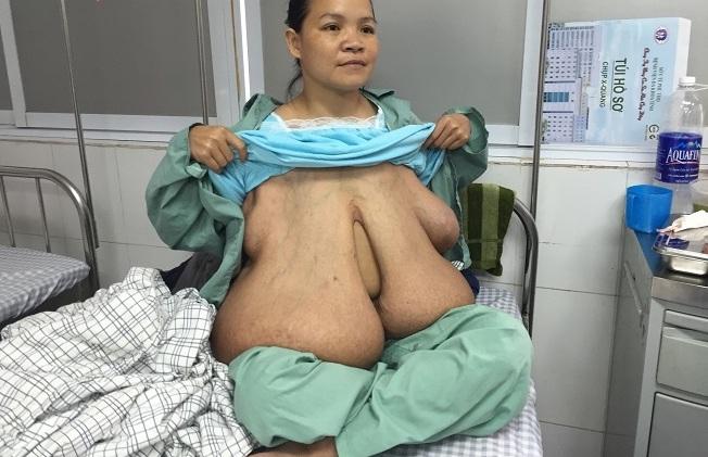 """Cuộc sống của người đàn bà có """"ngực dài quá rốn"""" giờ ra sao? - hình ảnh 3"""