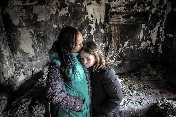 """Cuộc đời bi kịch của cô gái mang gương mặt """"ác quỷ"""" sau cơn hỏa hoạn - hình ảnh 2"""
