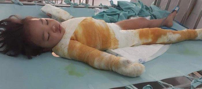 Mr. Đàm đến bệnh viện làm điều đặc biệt cho bé gái 3 tuổi bị bỏng nặng không tiền cứu chữa - 4