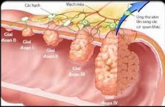 3 điều cực kỳ quan trọng để dự phòng bệnh ung thư đường tiêu hóa - hình ảnh 1