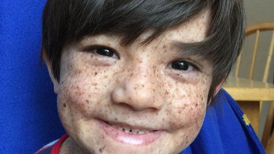 Bệnh lạ khiến cậu bé chỉ có thể sống về đêm - hình ảnh 1