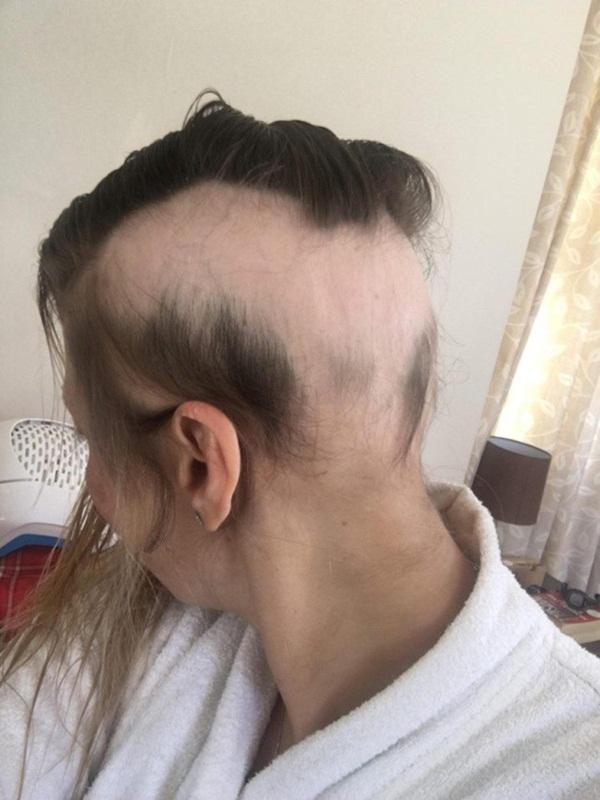 Cô gái bị hói trắng đầu vì khủng hoảng tiền hôn nhân - hình ảnh 2