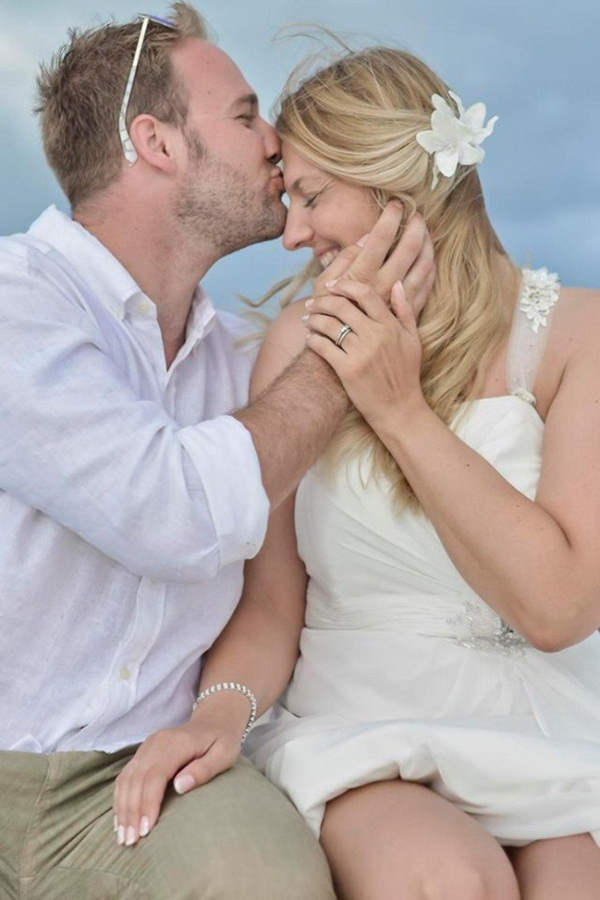 Cô gái bị hói trắng đầu vì khủng hoảng tiền hôn nhân - hình ảnh 3
