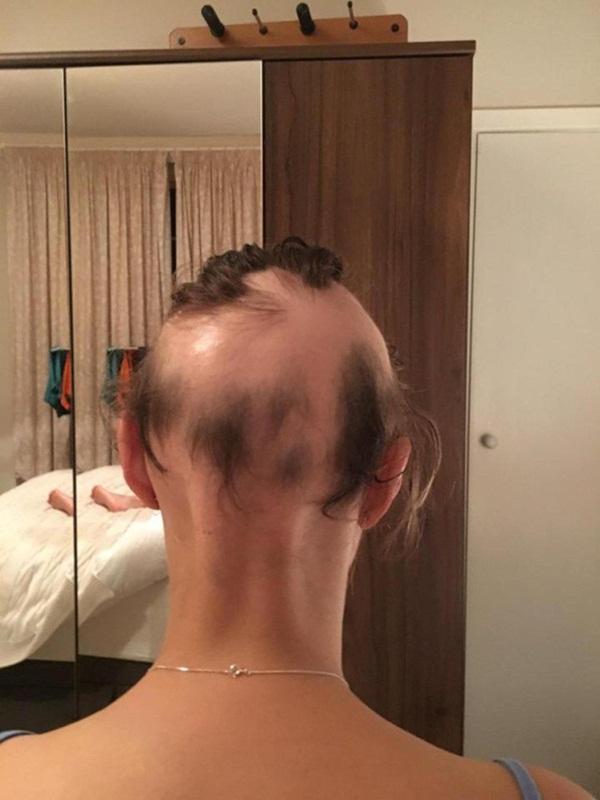 Cô gái bị hói trắng đầu vì khủng hoảng tiền hôn nhân - hình ảnh 4