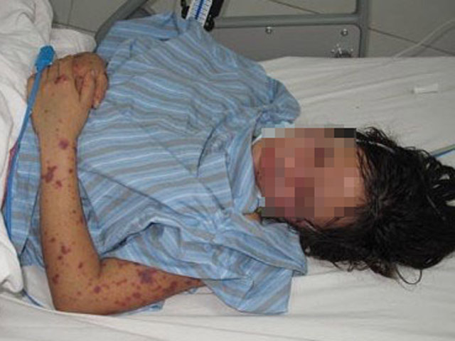 """Cách ly thiếu nữ 15 tuổi ở Hà Nội bị virus """"ăn não"""", theo dõi 28 người"""
