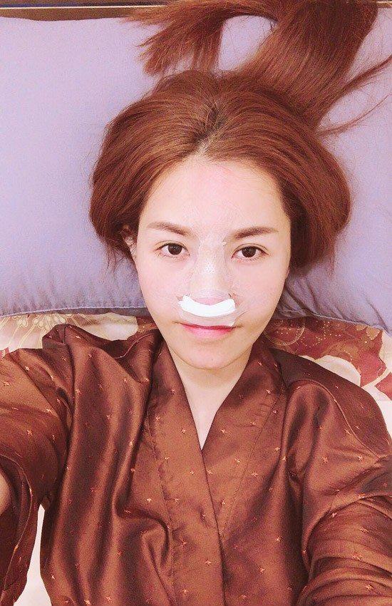 """Tình cũ Trường Giang """"dao kéo"""" lần 6 để có mũi Song Hee Kyo - 1"""