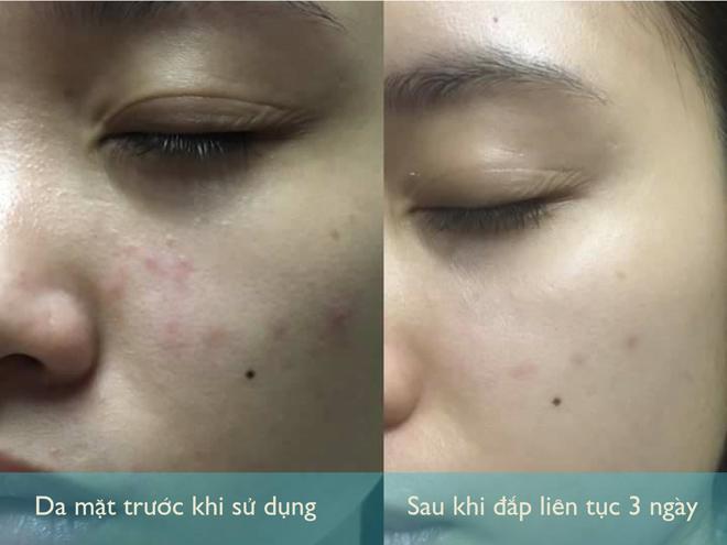 Chăm chỉ đắp loại mặt nạ này trong 7 ngày liên tục, bạn sẽ không khỏi ngạc nhiên trước làn da mới căng bóng và trắng mịn - 1