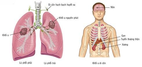 Loại quả rẻ nhất Việt Nam khiến tế bào ung thư không thể di căn - 1