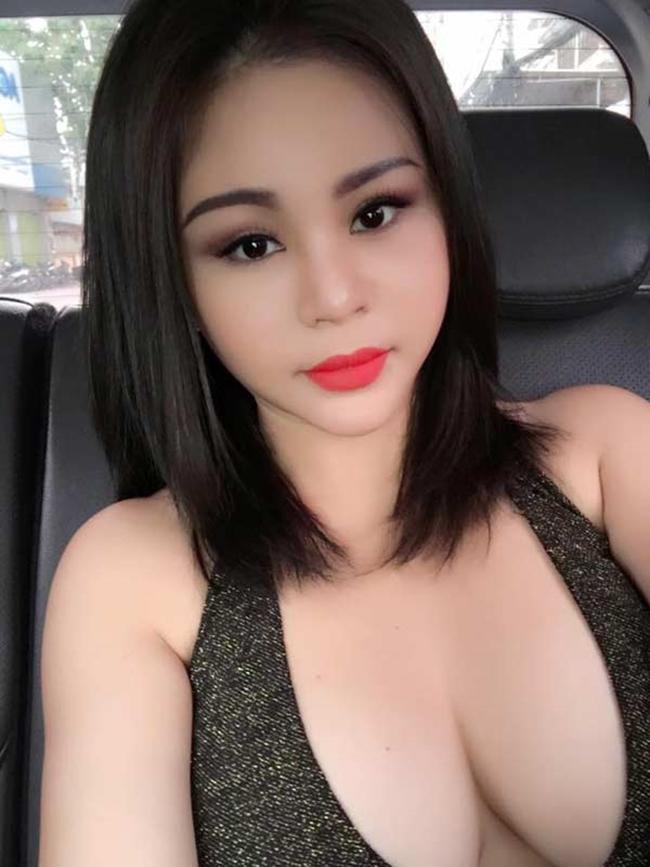 'Nữ danh hài được Hoài Linh đòi cưới' tiết lộ lý do không sửa mũi dù nghiện 'dao kéo' - 2