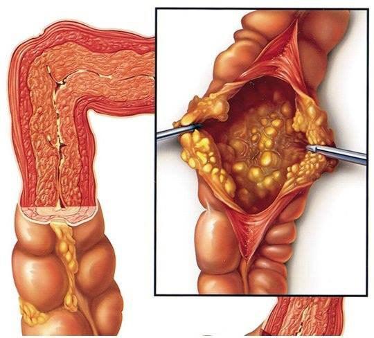 Biểu hiện của viêm đại tràng báo động xử lý ngay tránh biến chứng - 1