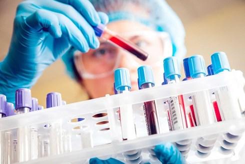 Việt Nam đứng thứ 3 thế giới về ung thư gan, cách phát hiện như thế nào? - 1
