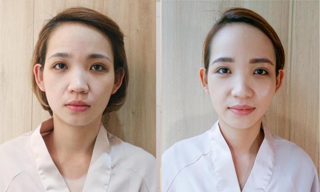 Tạo mặt V-line bằng tay với liệu pháp làm đẹp truyền thống Hàn Quốc - 2