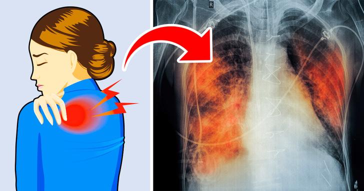 """Có 5 dấu hiệu này chứng tỏ phổi của bạn đang """"kêu cứu"""", tuyệt đối không được chủ quan - 1"""