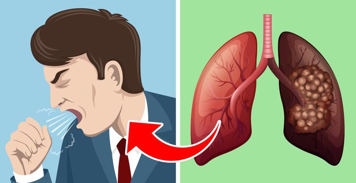 """Có 5 dấu hiệu này chứng tỏ phổi của bạn đang """"kêu cứu"""", tuyệt đối không được chủ quan - 2"""