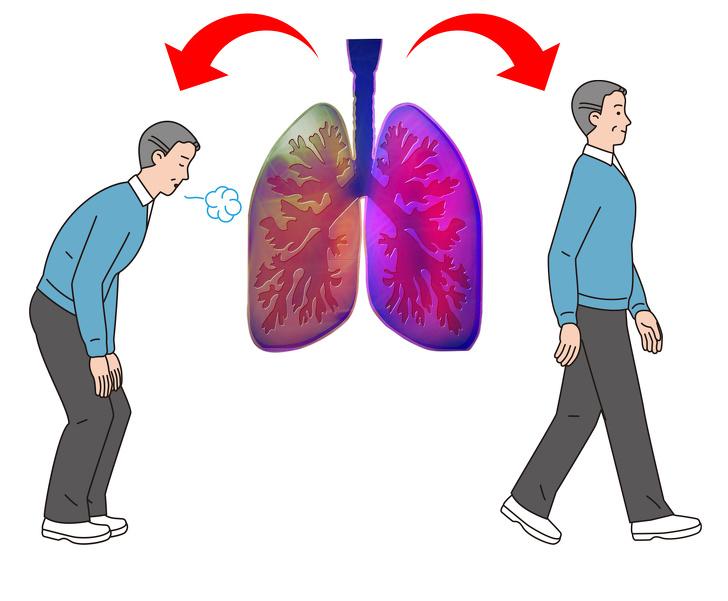"""Có 5 dấu hiệu này chứng tỏ phổi của bạn đang """"kêu cứu"""", tuyệt đối không được chủ quan - 3"""