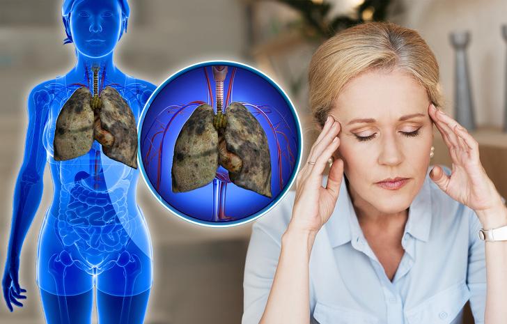 """Có 5 dấu hiệu này chứng tỏ phổi của bạn đang """"kêu cứu"""", tuyệt đối không được chủ quan - 5"""